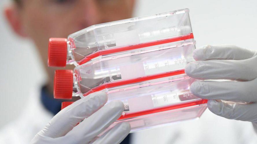 Coronavirus in Europa: So wappnet sich Deutschland gegen die Lungenkrankheit