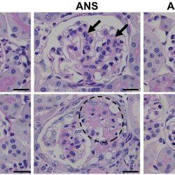 Histamin: ein unerwarteter Verteidiger gegen Herz-und Nieren-Schäden