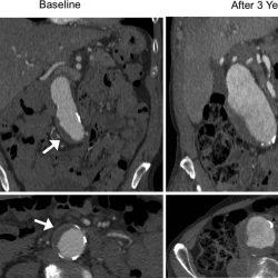 Die Anwesenheit von Blutgerinnsel im Zusammenhang mit rapid-Aorten-Aneurysma Wachstum