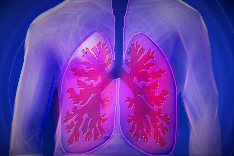 Die Golden State gemischten Datensatz auf Lungenkrebs