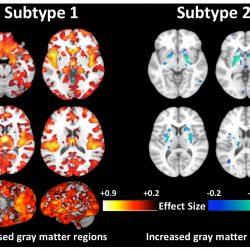 Forscher entdecken zweite Art von Schizophrenie