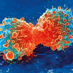 Brustkrebs-op: Bessere Ergebnisse mit höheren Fallzahlen