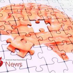 Diabetes, Alzheimer zusammen könnte zu erhöhen Schlaganfall-schwere