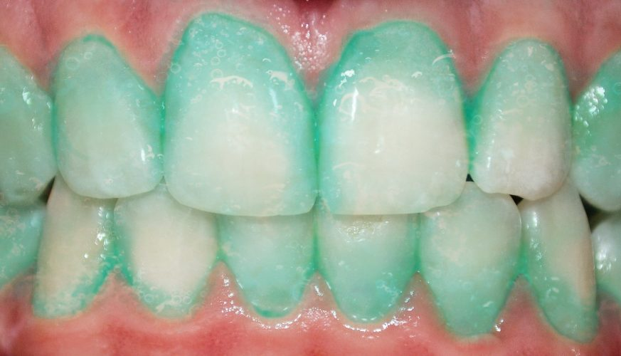 Könnte diese plaque Identifizierung Zahnpasta verhindern, einen Herzinfarkt oder Schlaganfall?