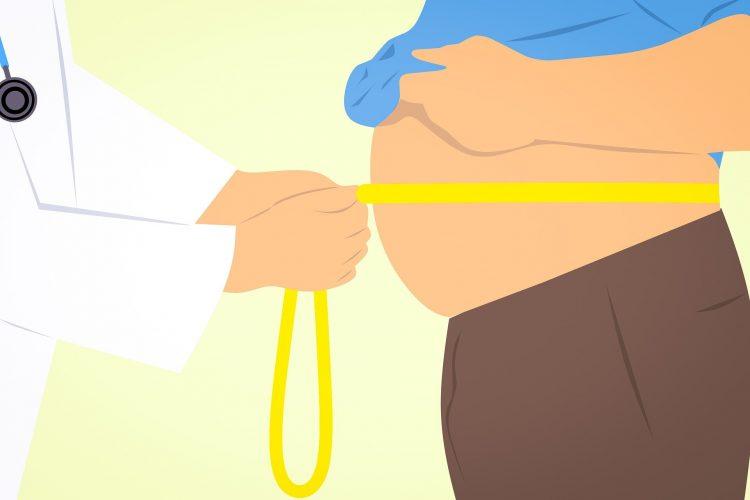 Bariatric Chirurgie, die wirksam gegen early-onset obesity