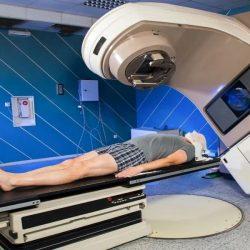Reirradiation selten erforderlich, im Brennpunkt Strahlung Therapie für das multiple Myelom