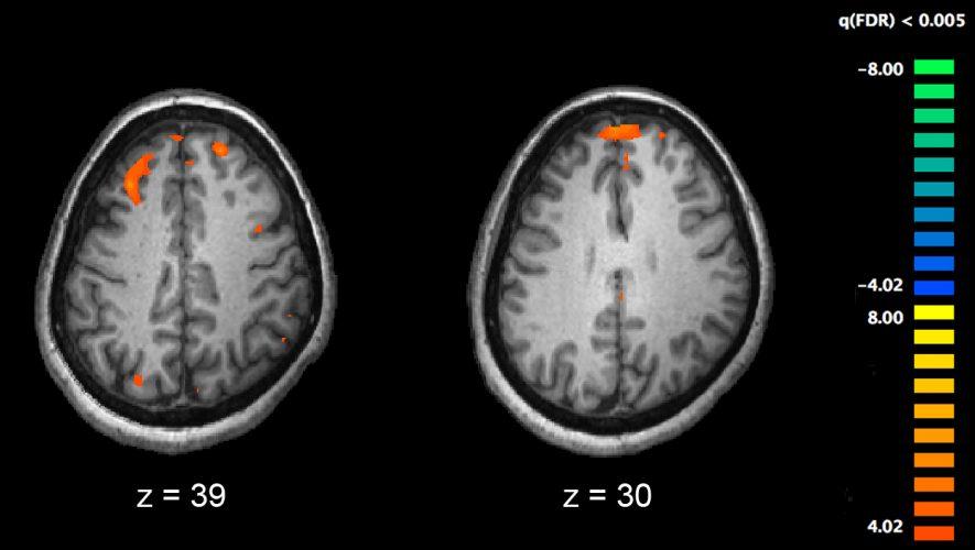 Auseinandersetzung mit Schizophrenie—Experten plädieren für neue Ansätze zur Behandlung