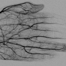 Was interventionellen Radiologen wissen müssen über Erfrierungen und Amputationen
