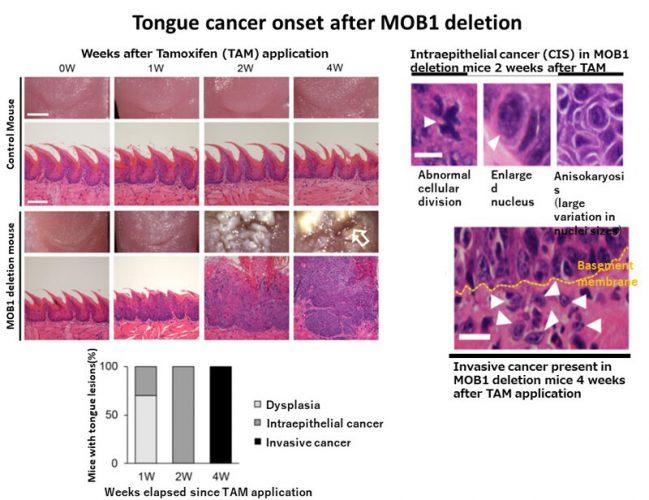 Die YAP-signal spielt eine entscheidende Rolle in der Kopf-und-Hals-Krebs auftreten
