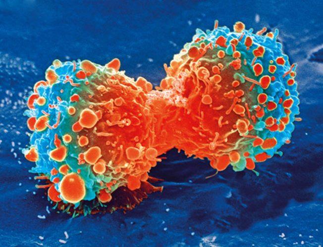 Forscher erstellen neue Möglichkeit zur Erkennung von Brustkrebs genauer