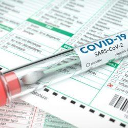 Coronavirus: Körperliche Betätigung scheint das Sterberisiko zu verringern – Naturheilkunde & Naturheilverfahren Fachportal