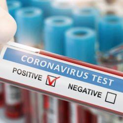 Coronaviren mit neuem sensorenbasiertem Test schnell und zuverlässig identifizieren – Naturheilkunde & Naturheilverfahren Fachportal