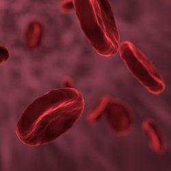 Neue MDS-Subtyp vorgeschlagen, basierend auf der Anwesenheit der genetischen mutation