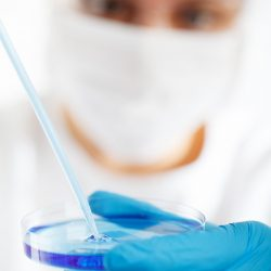 EULAR: Hydroxychloroquine Einsatz in der lupus-Patienten nicht scheinen, um zu verhindern, dass COVID-19'