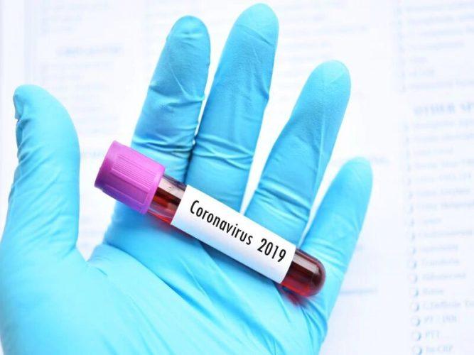 Wenn die USA wieder öffnet, wird diese ausgesetzt coronavirus haben, eine dauerhafte Immunität?