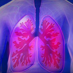 Einen diagnostischen Lungenkrebs-test zur Identifizierung von Patienten mit hohem Risiko der COVID-19 Komplikationen