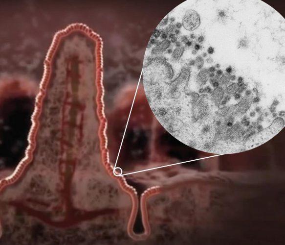 Coronavirus-SARS-CoV-2 infiziert Zellen des Darms