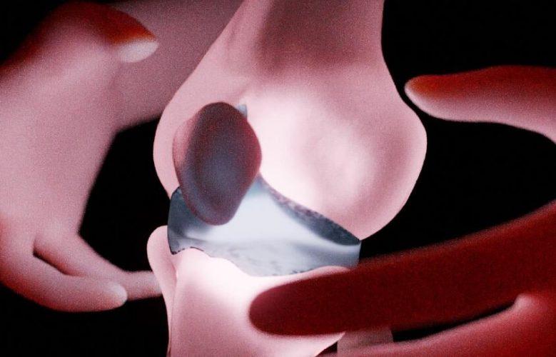 Kombinatorische screening-Ansatz öffnet sich der Pfad zu einer besseren Qualität des Gelenkknorpels