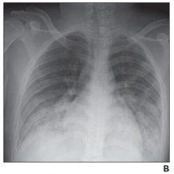 Pädiatrische coronavirus disease (COVID-19), X-ray, CT in der Beurteilung von neuen Erkrankungen der Lunge