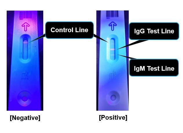 Positivität für COVID-19-Antikörper offenbart werden, so hoch wie 1% bei Osaka Bürger