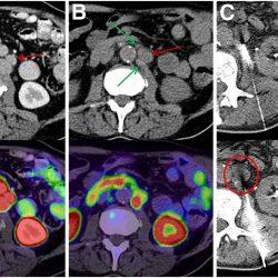 Potenziell behandelbare genetische Mutationen zeigte in der Untergruppe von Prostatakrebs-Patienten