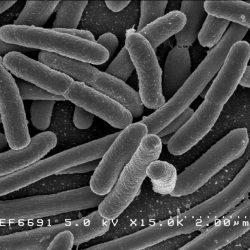 Forscher identifizieren saisonale Spitzen bei lebensmittelbedingten Infektionen