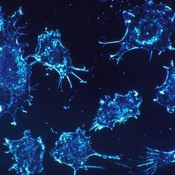 Ein Stoffwechsel-Enzym-Laufwerke Lymphom und ist ein potentieller Angriffspunkt