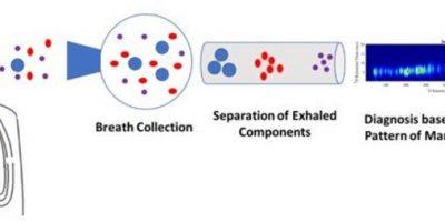 Wissenschaftler entwickeln bedeutet für die Erkennung von frühen Stadien von Lungen-Probleme, die von COVID-19