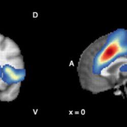 Antioxidantien im Gehirn verknüpft, um eine verbesserte Psychose Behandlung