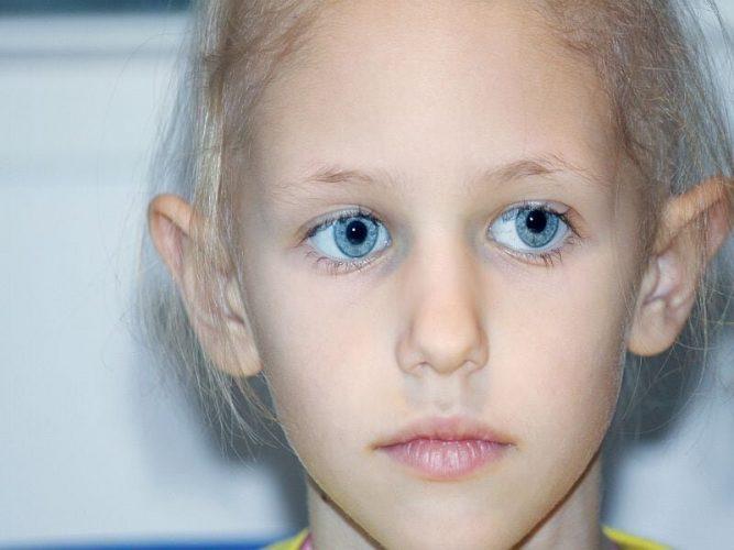 Gute Ernährung kann geschnitten Toxizität Risiko in der Behandlung der pädiatrischen ALL