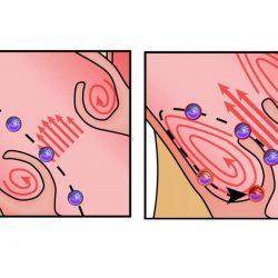 Hyperaktive Immunzellen zu beschleunigen, Herz-Ventil-Krankheit: Studie