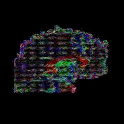 Gehirn Dicke und Konnektivität, nicht nur die Lage, die Korrelation mit Verhalten