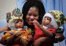 Italienische Ärzten trennen erfolgreich siamesische Zwillinge
