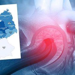 Der große Herz-Atlas: In vier Bundesländern ist Zahl der Herz-Kranken besonders hoch