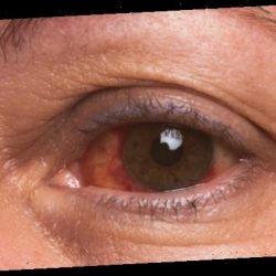 Dringt Corona auch über unsere Augen in den Körper ein? – Naturheilkunde & Naturheilverfahren Fachportal