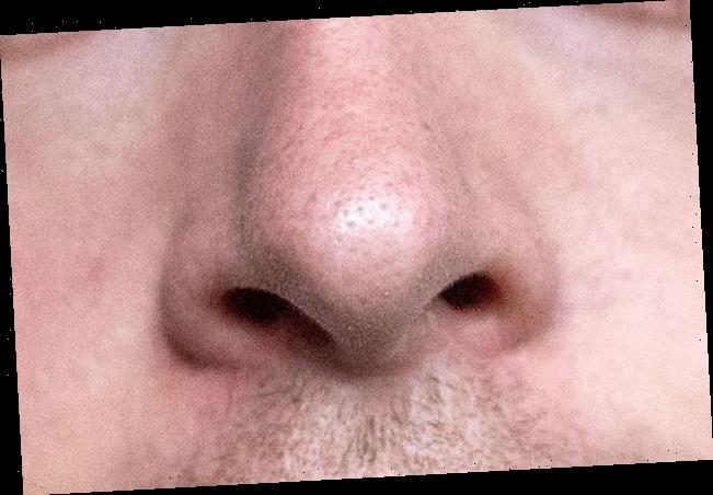 Corona-Symptome: Geruchssinn häufiger bei mildem Covid-Verlauf eingeschränkt